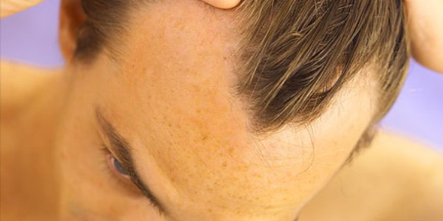 Hair Loss: Your Best Options for Dealing with Baldness